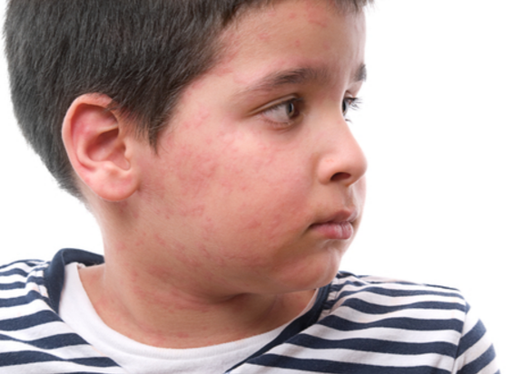 Allergic Reaction First Aid Care Brentwood, TN Physicians Urgent Care