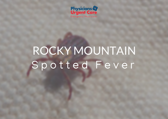 Rocky Mountain Spotted Fever Tick on Blanket